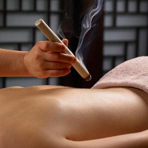 Moxanje akupunkturne